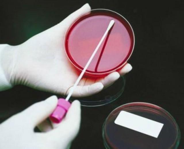 Samo 1450 din za paket briseva na bakterije CHLAMYDIA, UREAPLASMA I MYCOPLASMA za žene ili muškarce u laboratorijama SIM!