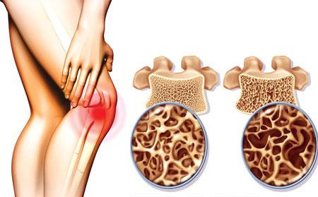 Samo 700 din dijagnostikovanje OSTEOPOROZE - provera gustine koštane mase (osteodenzitometrija) uz preporuku lečenja, SB medic!