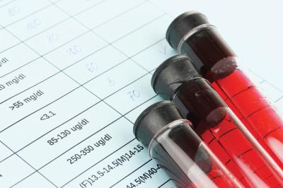 Samo 930 din kompletna biohemijska ANALIZA KRVI, Talija Lab na 4 lokacije u gradu (Dorćol, Mirijevo, Labudovo brdo, Zemun polje)